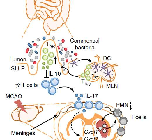 Ischemic stroke therapy – does the gut microbiota hold the key?