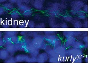 'Kurly' protein keeps cilia moving, oriented in the right direction