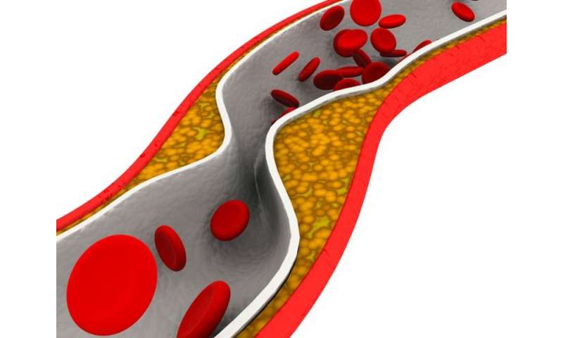 LDL reduction in hypertriglyceridemia varies per statin
