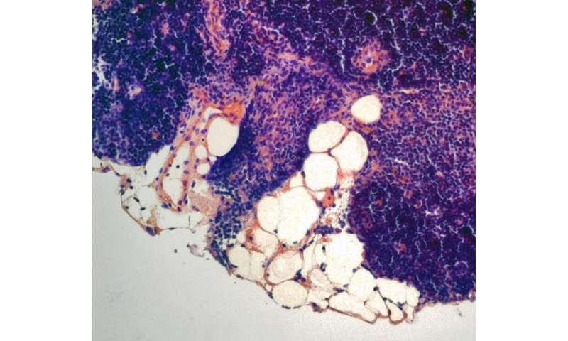 Life-extending hormone bolsters the body's immune function