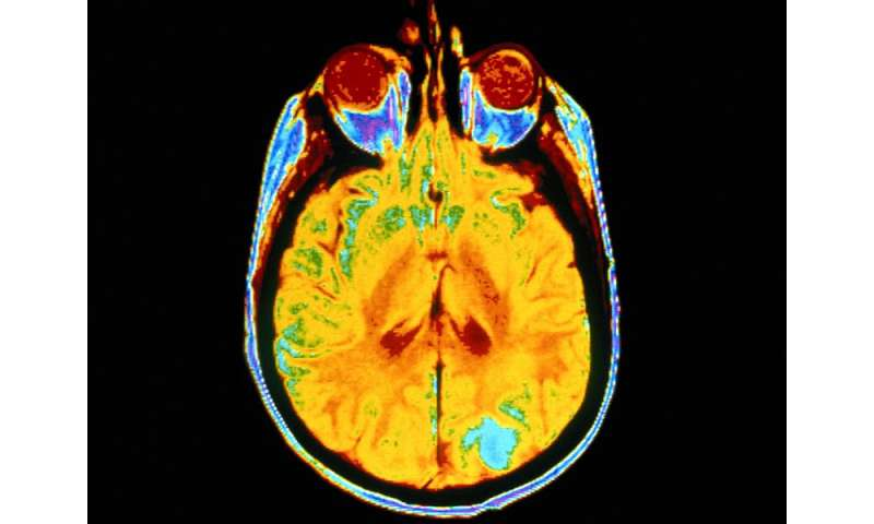 Long-term weight loss cuts diabetes-related brain changes