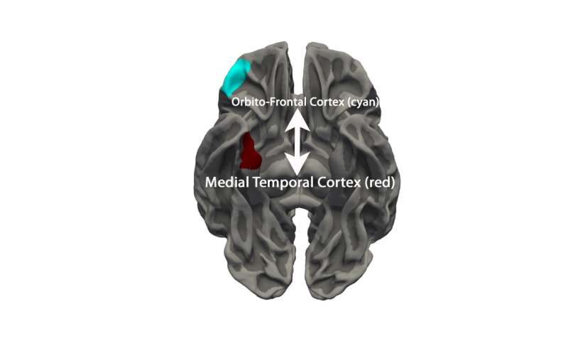Map of teenage brain provides evidence of link between antisocial behavior and brain development