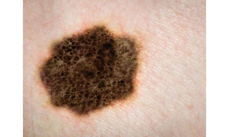 Melanoma therapy tied to cutaneous adverse events