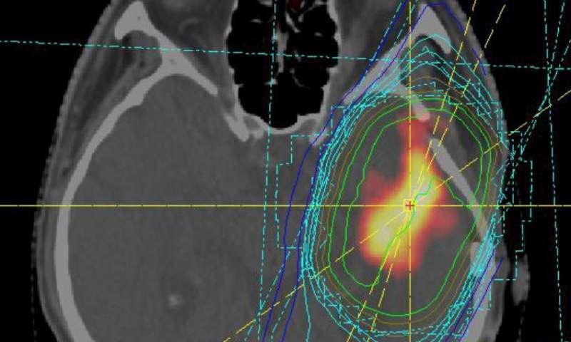 microRNAs help to predict disease progression in brain tumors