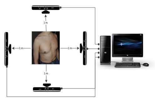 Microsoft's Xbox Kinect breathes new life into respiratory assessment