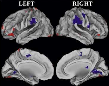 Middle-age memory decline a matter of changing focus