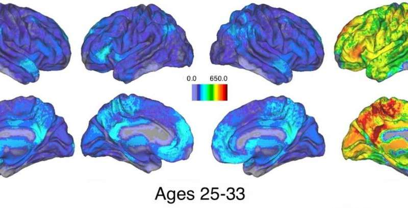 Missed connections: As people age, memory-related brain activity loses cohesion