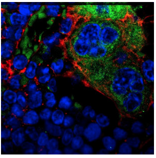 Mutations in bone cells can drive leukemia in neighboring stem cells