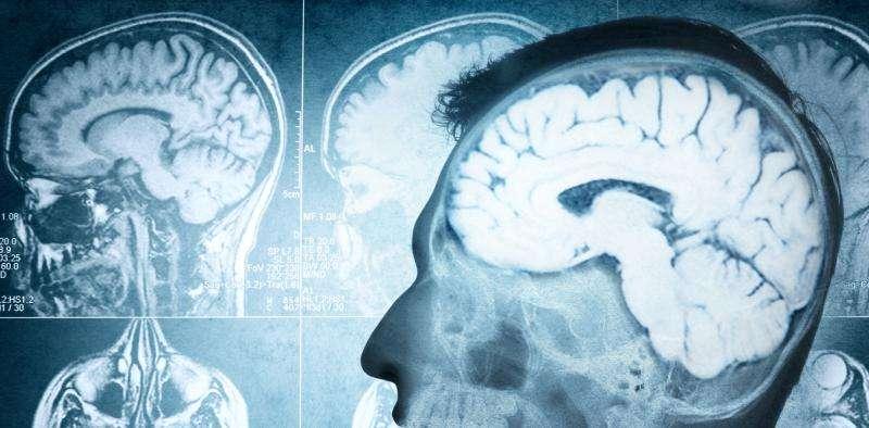 My brain made me do it: will neuroscience change the way we punish criminals?
