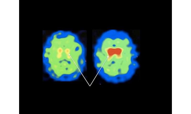 Natural molecule could improve Parkinson's
