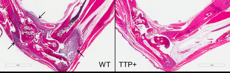 Natural protein points to new inflammation treatment