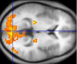 Neuromotor problems at the core of autism, study says