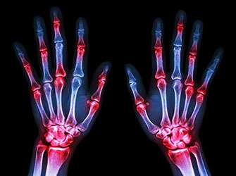 New drug for the treatment of rheumatoid arthritis shows promising success