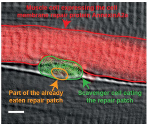 New findings give insight into the cell membrane repair process of torn muscle fibers