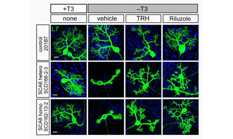 New iPS-cell model system helps develop treatments for spinocerebellar ataxia