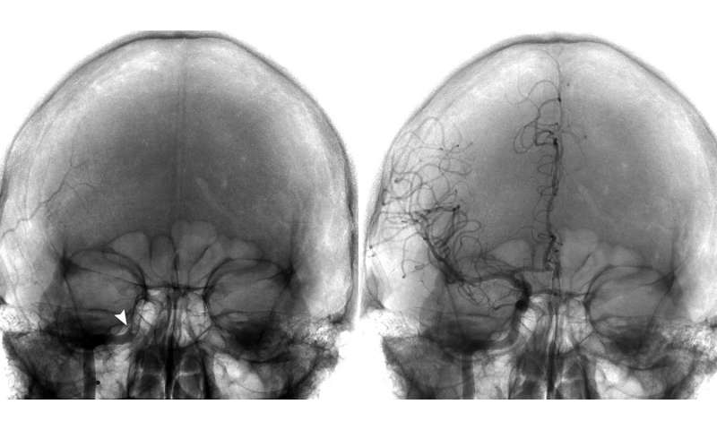 New neuroendovascular technique shows promise in stroke patients with large-vessel clots