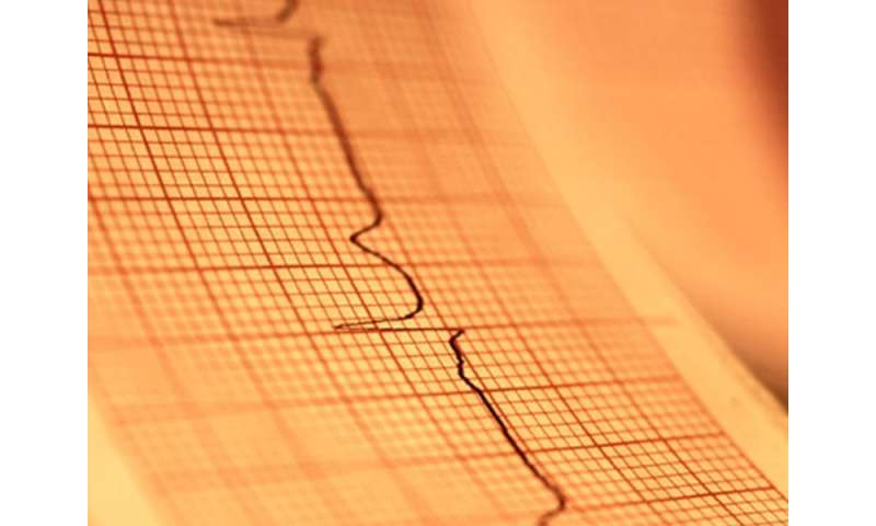 New-onset A-fib post acute MI ups complications, readmission