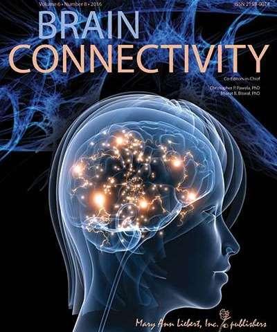 New quantitative technique shows microstructural brain alternations in autism spectrum disorder