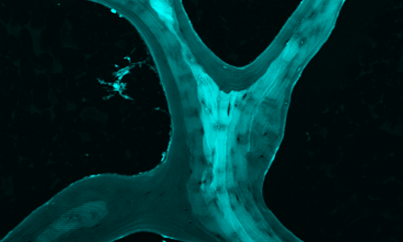 New understanding of bones could lead to stronger materials, osteoporosis treatment