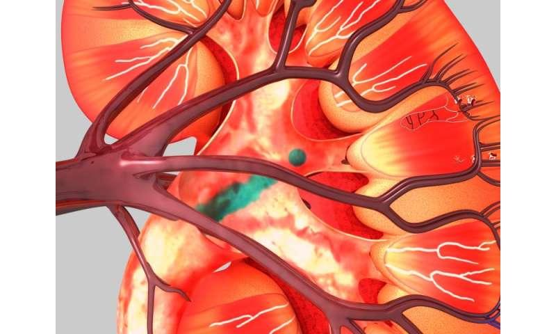 No benefit from aliskiren-tied drops in albuminuria