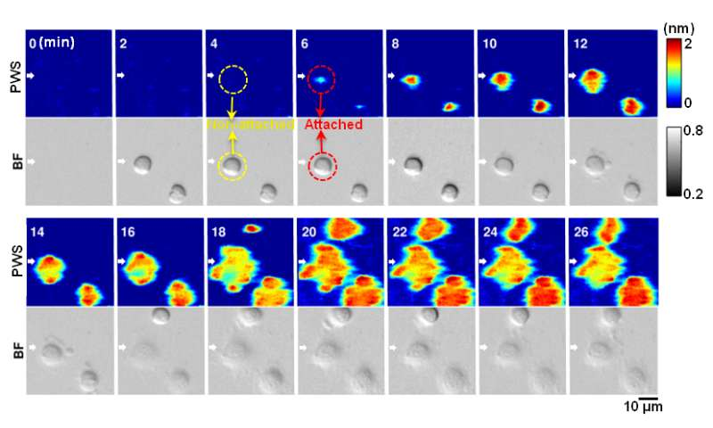 Novel label-free microscopy enables dynamic, high-resolution imaging of cell interactions
