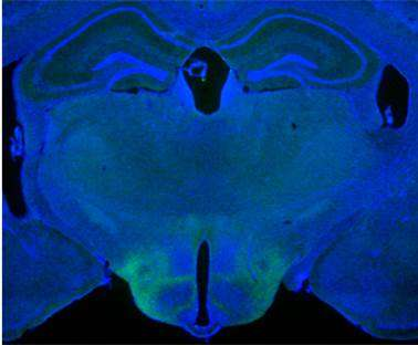 Origins of 'rage' identified in brain in male animal model
