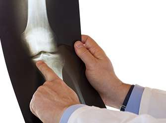 Osteoarthritis: carbohydrate-binding protein promotes inflammation
