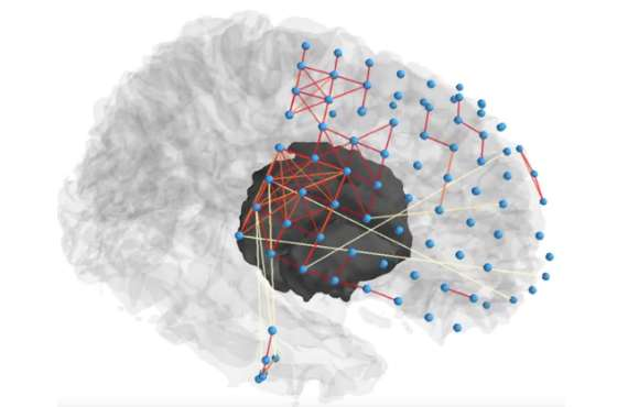 Penn researchers use network science to help pinpoint source of seizures