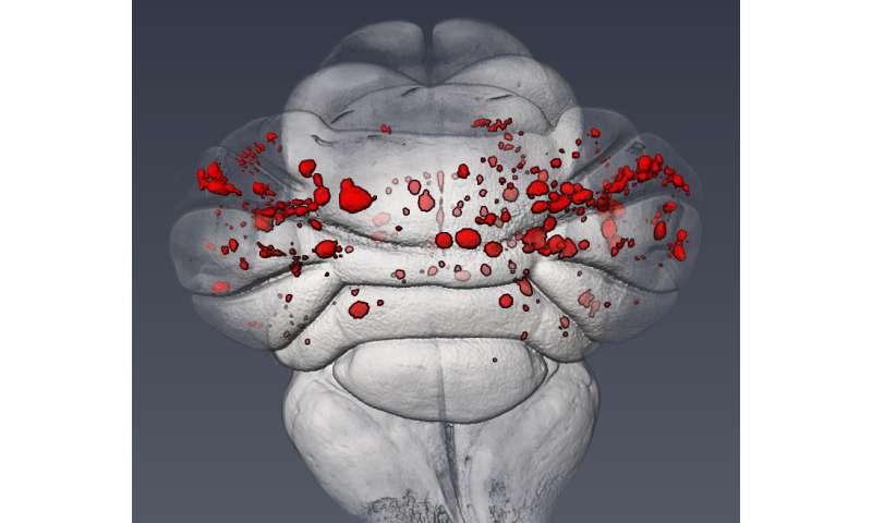 Penn study describes the molecular cause of common cerebrovascular disease