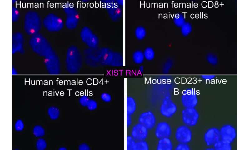 Penn vet study identifies mechanism explaining female bias in autoimmunity