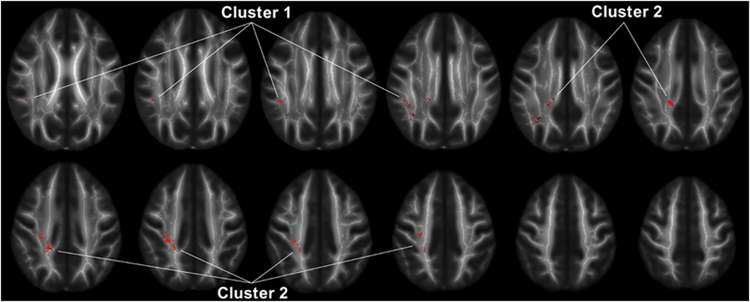 People with anger disorder have decreased connectivity between regions of the brain