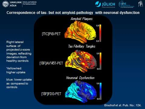 PET points to tau protein as leading culprit in Alzheimer's