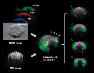 Photoacoustic and magnetic resonance imaging visualizes blood flow and oxygenation status in brain tumor tissue