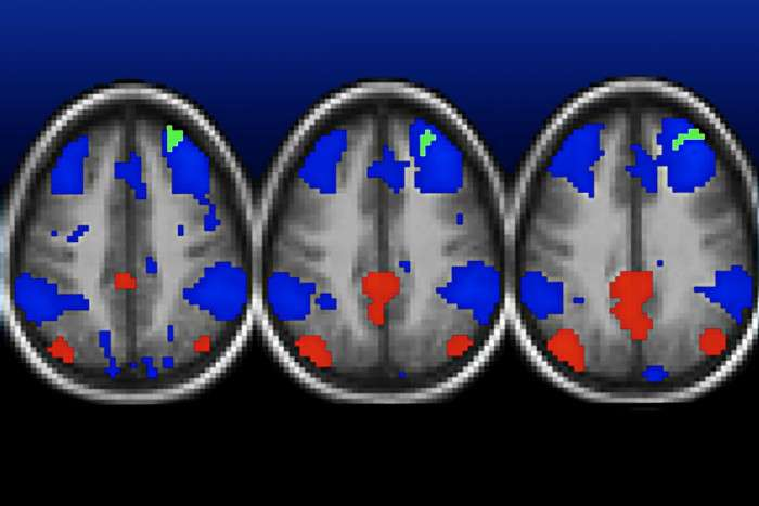 Poverty linked to childhood depression, changes in brain connectivity
