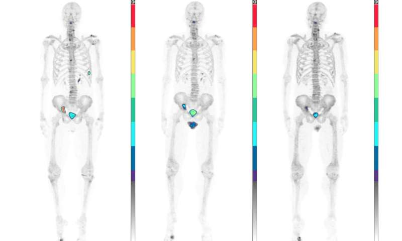 Predicting advanced prostate cancer outcomes with NaF-PET/CT
