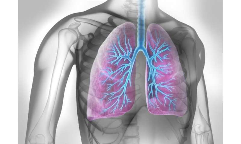 Protein biomarker as potential tool for predicting lung cancer survival