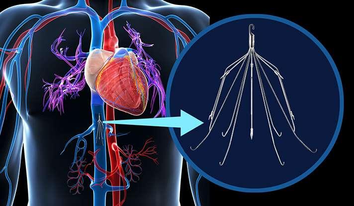 Pulmonary embolism treatment widely used despite uncertain benefit