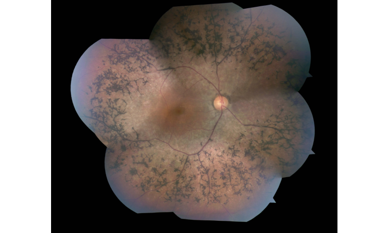 Retinitis pigmentosa may be treated by reprogramming sugar metabolism