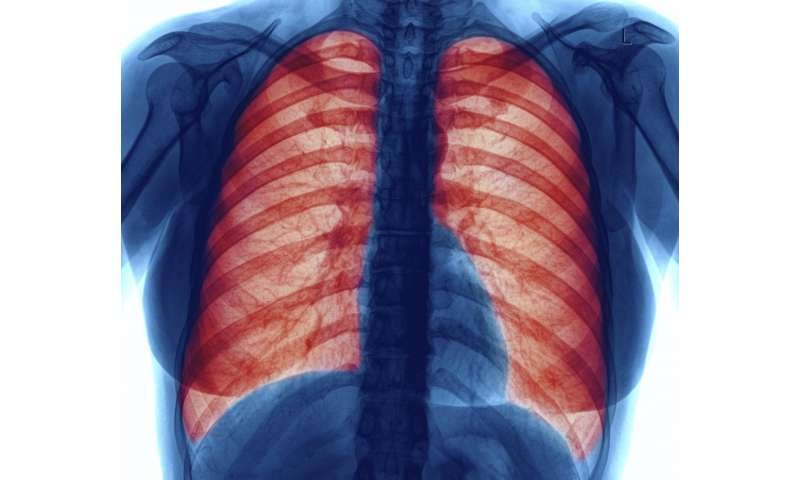 Risk of mortality linked to interstitial lung abnormalities