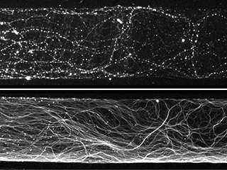 Scientists question a popular theory about how the nervous system trims its branches