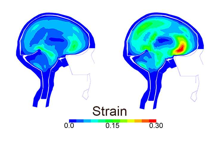 Simulations show how helmets would have protected bike crash victims' brains