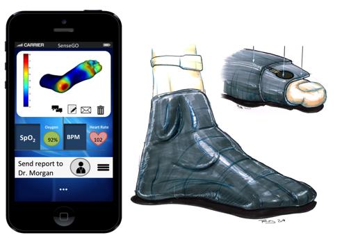 Smartphones and intelligent socks to help prevent diabetic amputations