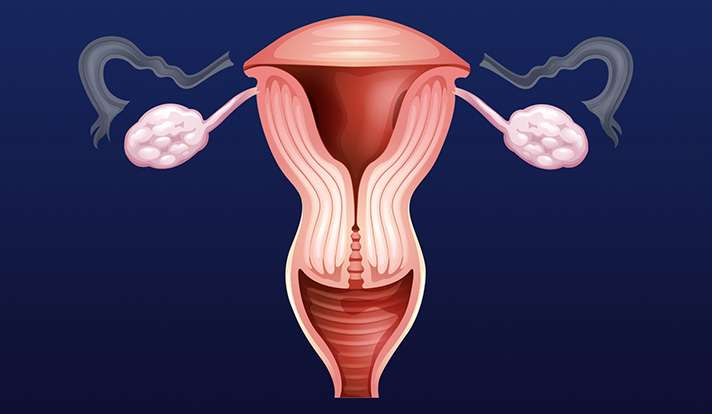Sparing ovaries and removing fallopian tubes may cut cancer risk, but few have procedure