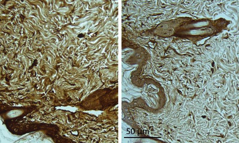 Stanford study identifies new biomarkers for Huntington's disease