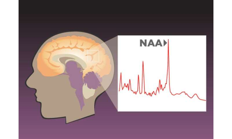 Study finds brain markers of numeric, verbal and spatial reasoning abilities