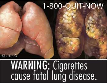 Study: Graphic pictures on cigarette packs would significantly reduce smoking death rate