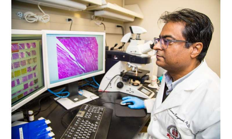 Study unveils new therapeutic target for spinal muscular atrophy
