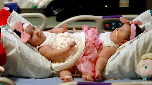 Surgery begins to separate infant conjoined twins in Texas
