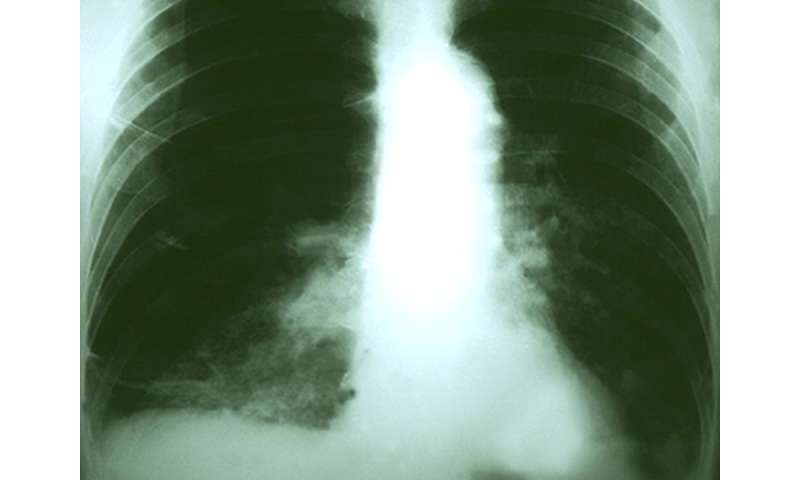 Targeted therapies beneficial in <i>KRAS</i>-mutated NSCLC