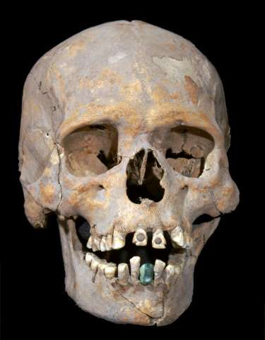 The 1,600-year-old skeleton of an upper-class woman found near Mexico's ancient Teotihuacan wore a prosthetic lower tooth made o